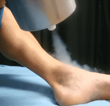 Cryotherapy for Plantar Warts