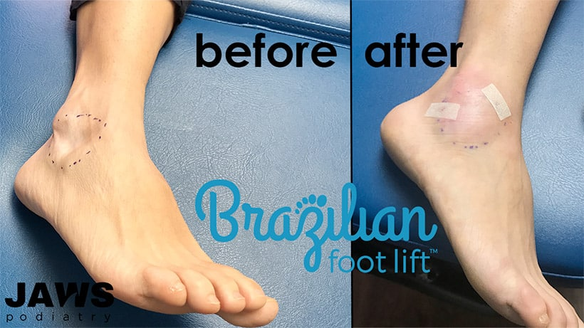 Brazilian Foot Lift