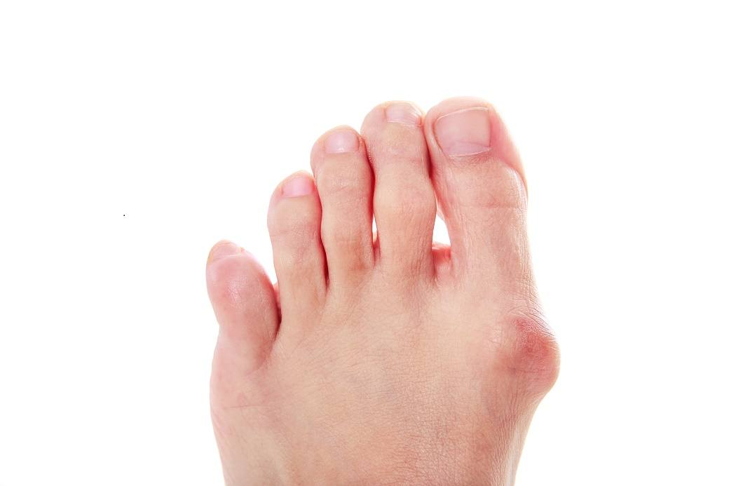 What Is a Bunion On Your Toe?