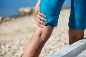 6 Signs You Have Varicose Veins