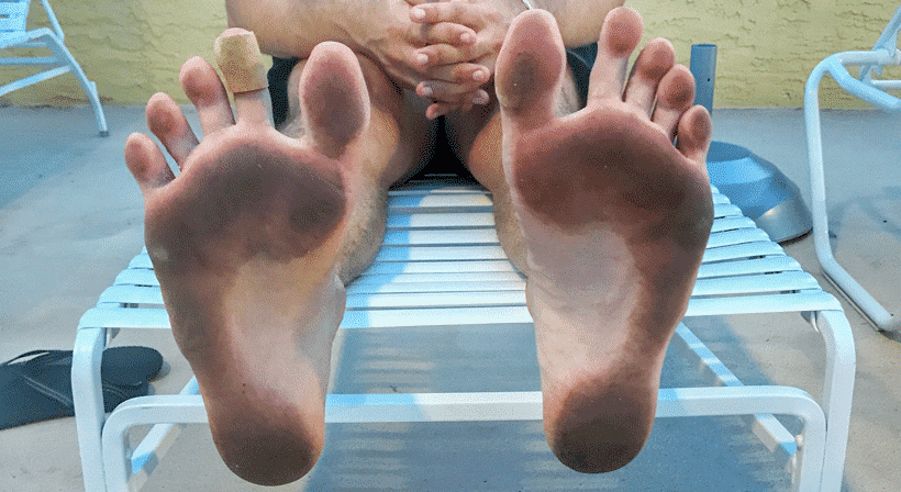 Causes and Treatments For Corns and Calluses