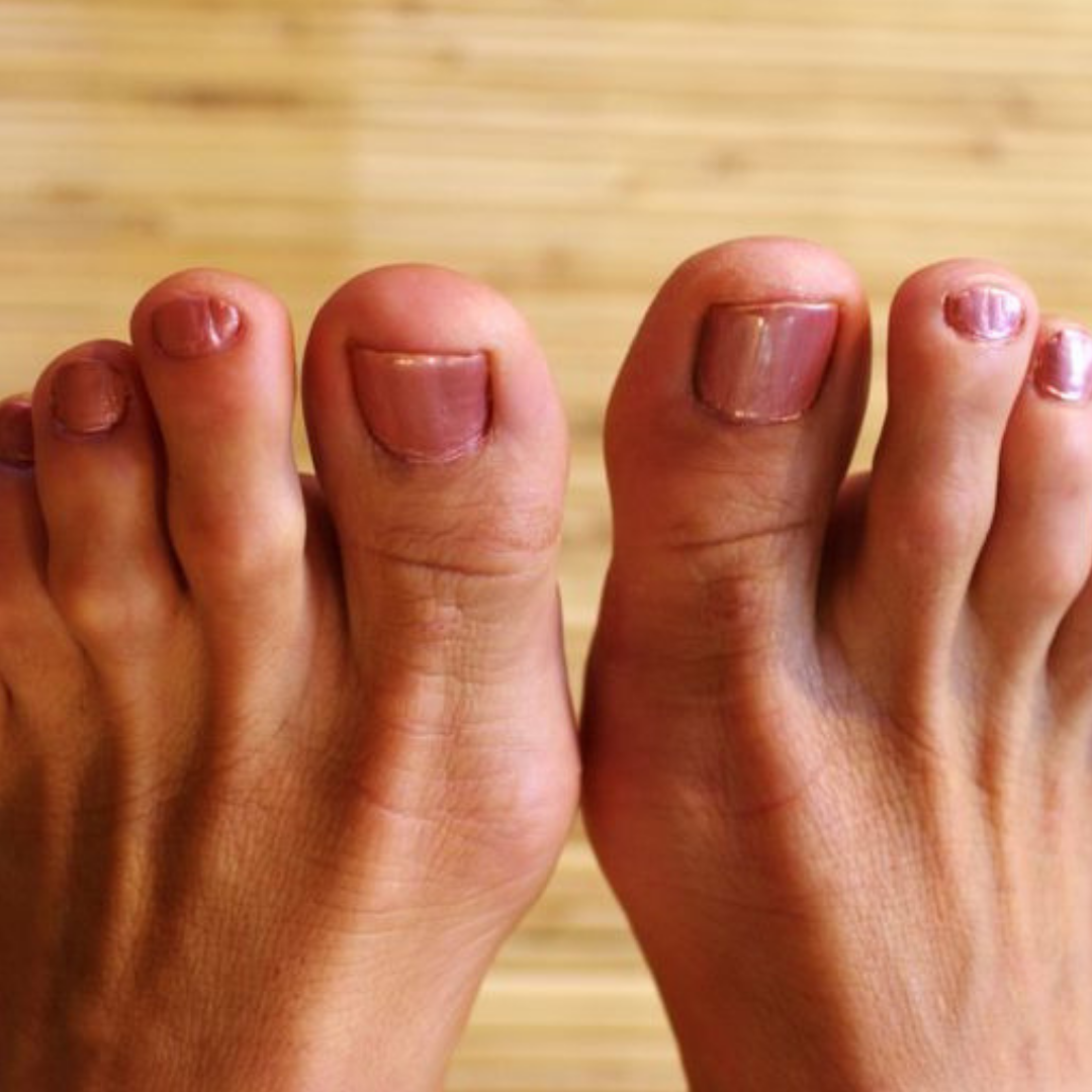 Hammertoe: Symptoms, Causes, and Treatment