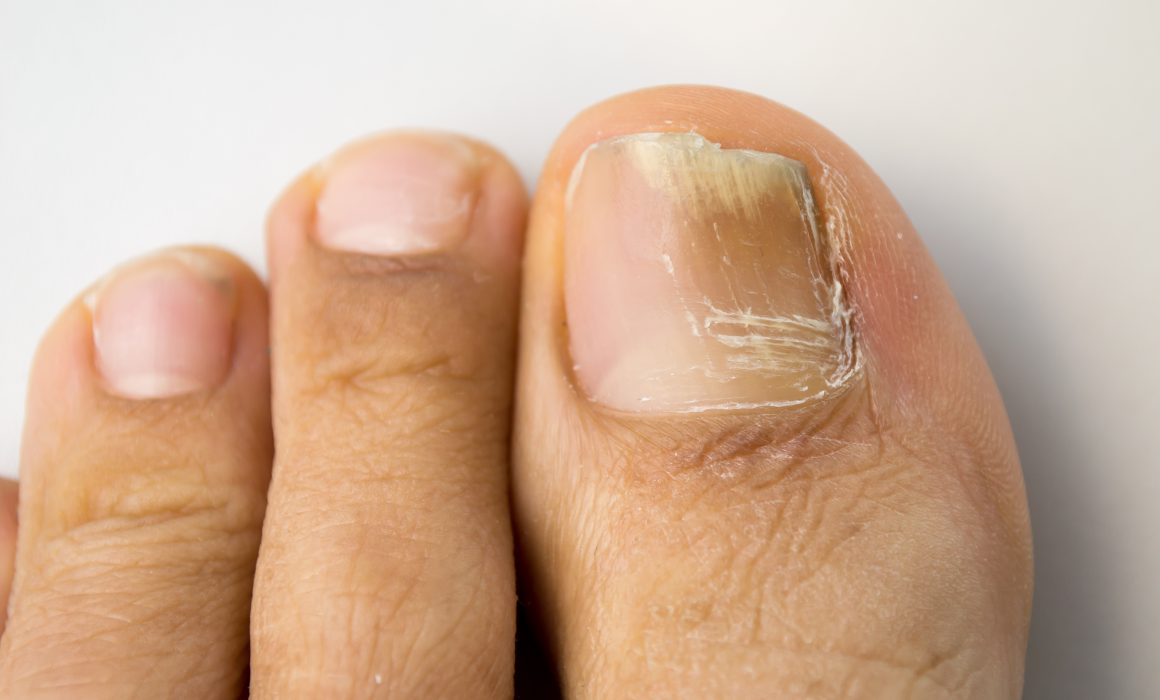 How to Get Rid of Toenail Fungus