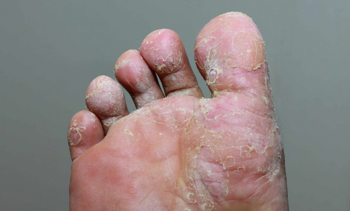 Types of Fungal Foot Infections