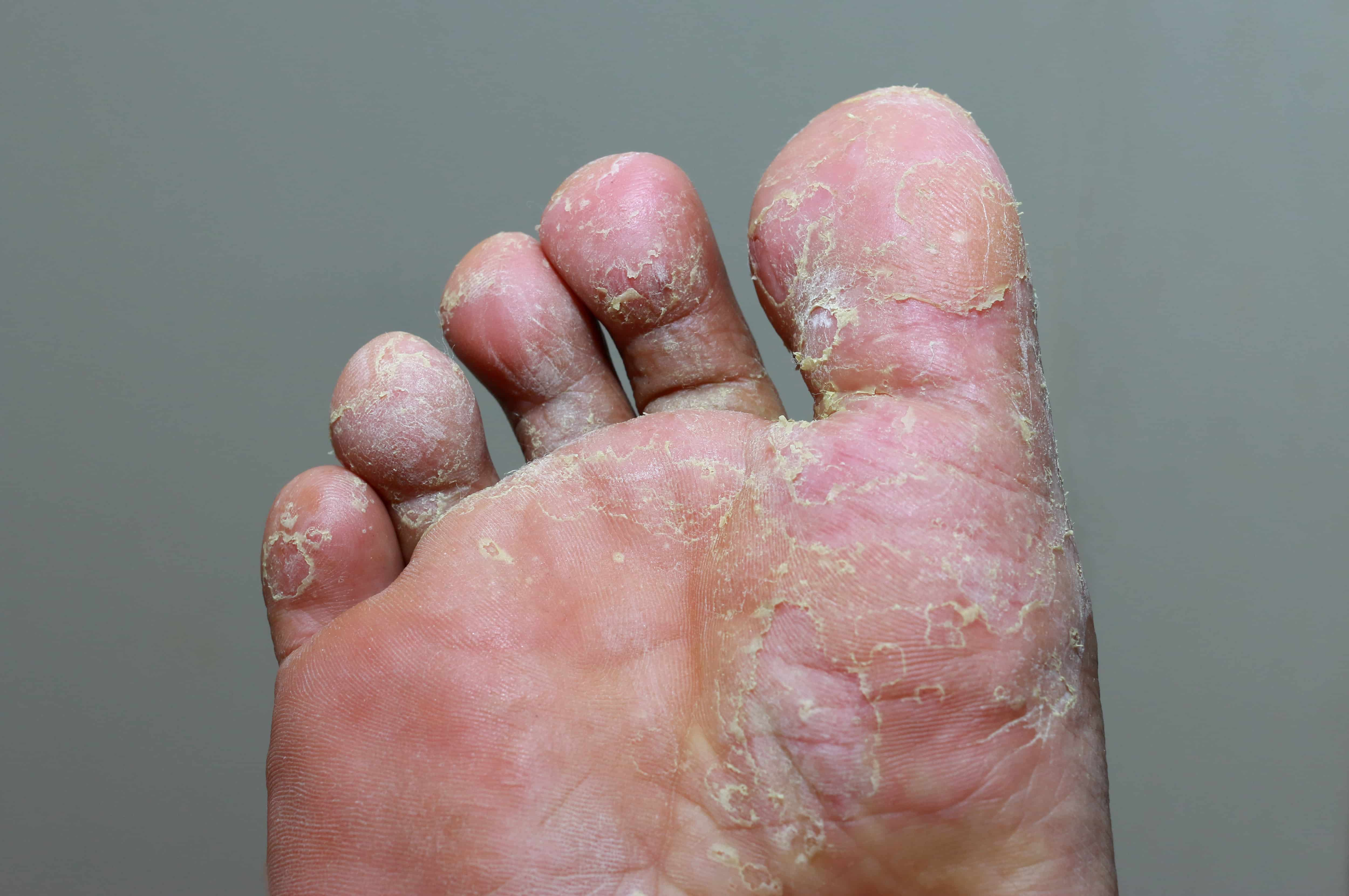 Types Of Fungal Foot Infections Jaws Podiatry