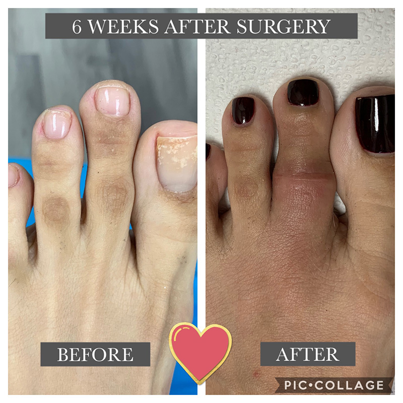 Aesthetic Toe Surgery Procedures Minimally Invasive Jaws Podiatry