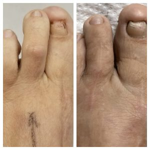 Toe Straightening Before & After