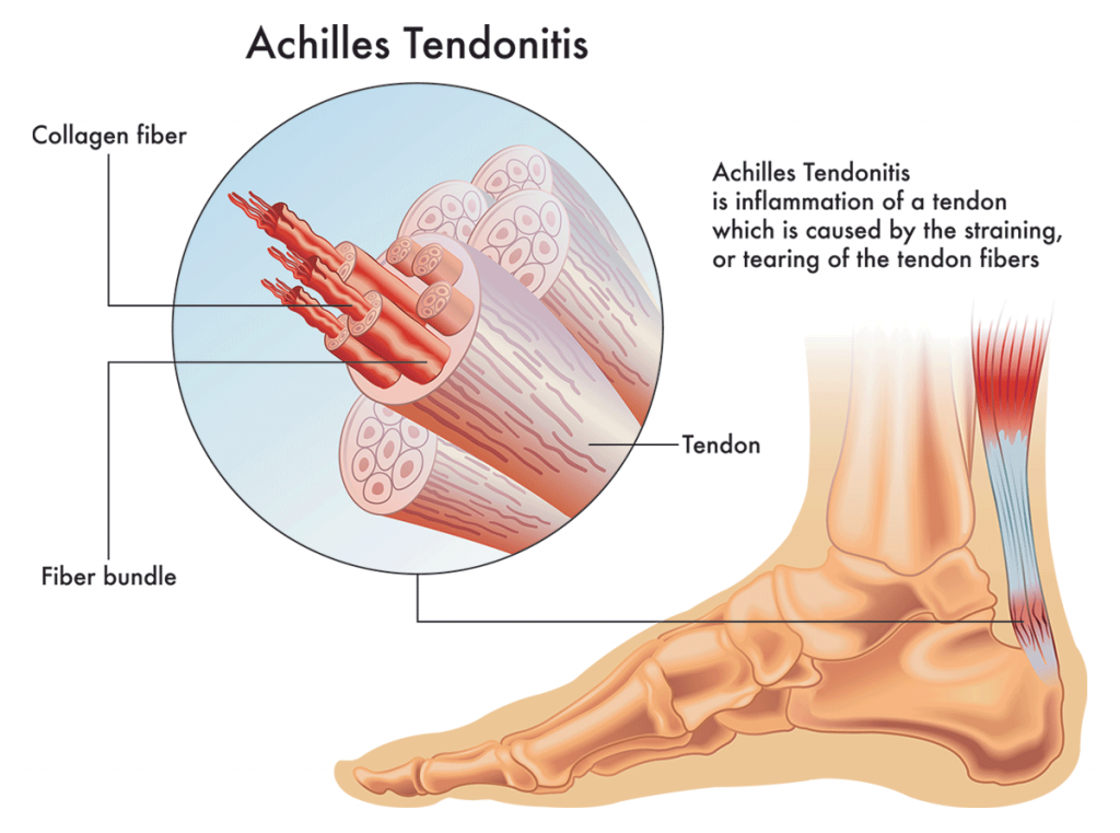 Achilles Tendon Pain: Causes, Treatments & Prevention