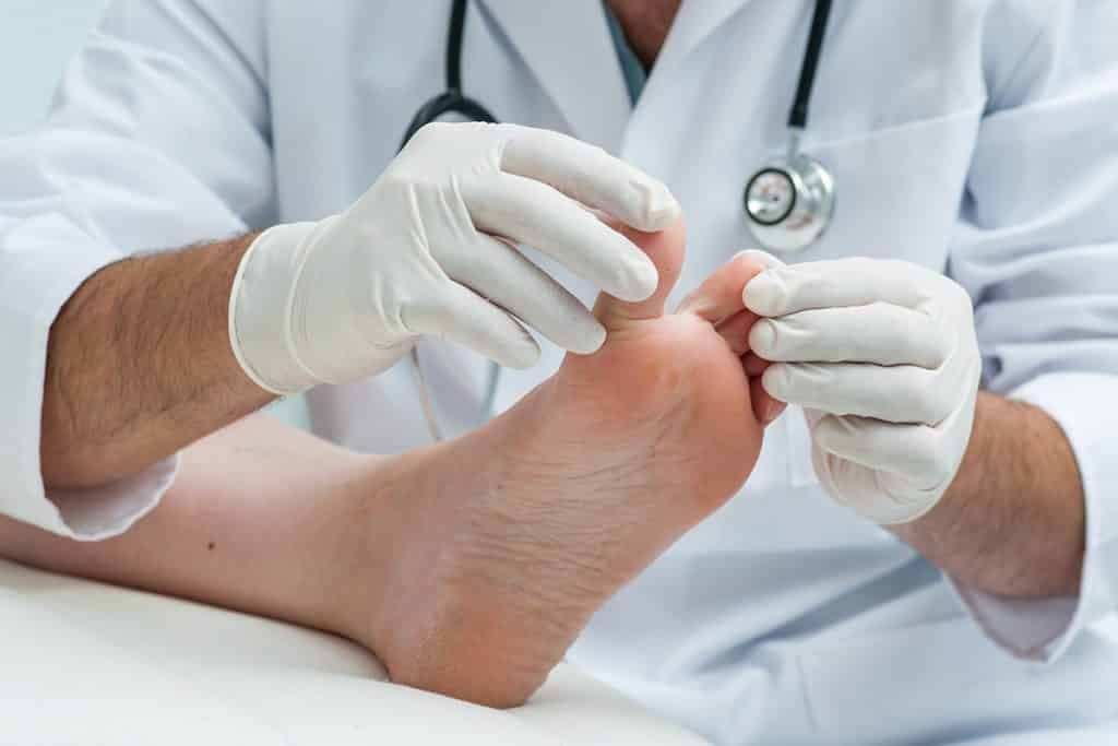 Everything You Need to Know About Diabetes and Feet