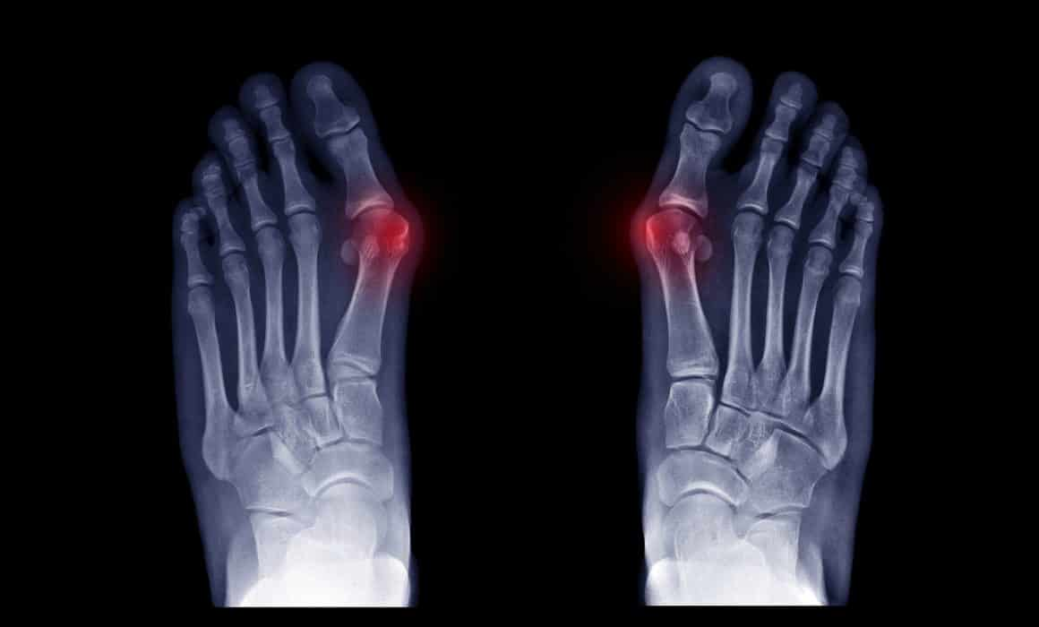 Early Signs & Symptoms of Bunions
